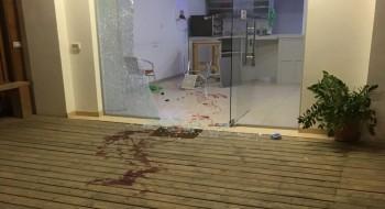 كفرقرع: اصابة شاب من عرعرة باطلاق نار والشرطة تحقق