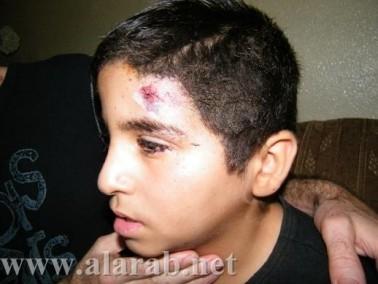 علاء أبو راس بعد اصابة طفله:أين دور مجلس كفركنا