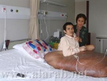 إزالة ورم وزنه 90 كيلوغراما من مريض فيتنامي