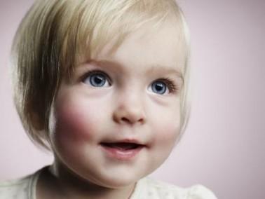 ما العلاقة بين سرطان الدم وبدانة الاطفال؟