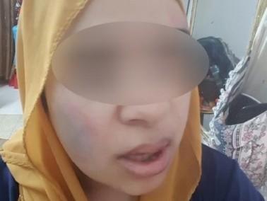 شابة من جت: يهودي قام بضربي وهدّدني بالقتل