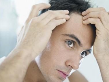 حلول طبية لمنع تساقط الشعر