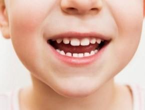 العلماء: يفضل الاحتفاظ بأسنان الأطفال اللبنية بعد سقوطها