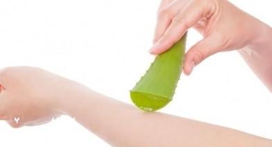 الألوفيرا لعلاج تهيج الجلد والصدفية وأمراض أُخرى