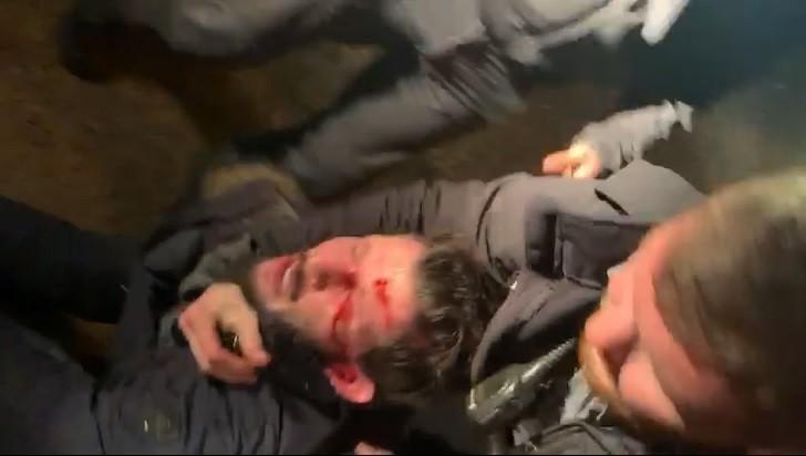 سكان من يافا: الشرطة اعتدت على شاب فلسطيني واصابته