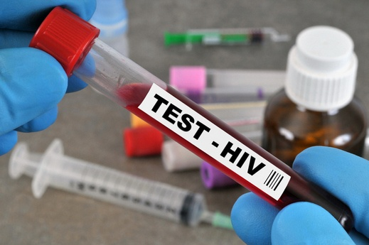 دراسة تبشّر بنهاية انتشار الإيدز جنسيّا