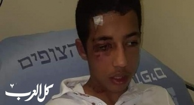 عائلة سويلم من شعفاط: ابننا تعرض لإعتداء عنصري