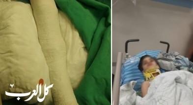 عائلة من قلنسوة: ابننا تعرض للدهس والسائق هرب