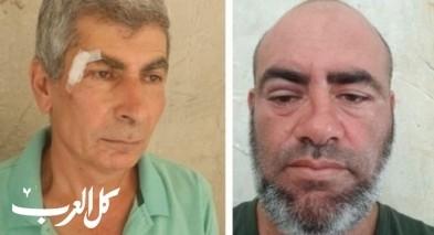 البعينة..اعتداء على محمد سعدي وخالد نابلسي في صفد