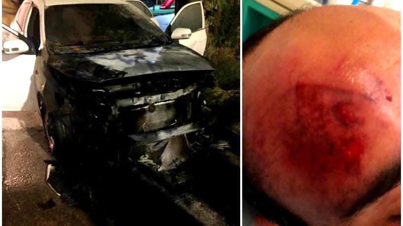 قلنسوة: الاعتداء على الشاب مصطفى شريف