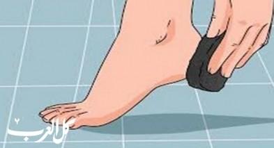 علاجات طبيعية لتشقق الكعبين