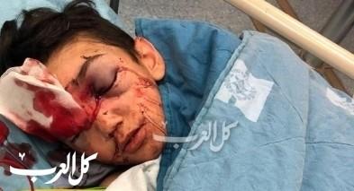 وائل عيسى من العيساوية: الشرطة اطلقت عيارات على ابني