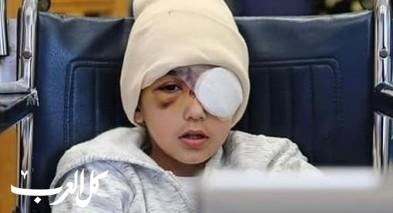 القدس: استئصال عين الطفل مالك عيسى