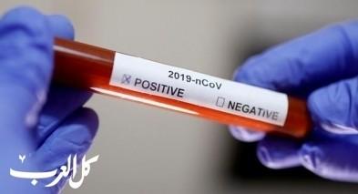 كيف تتم حالات الشفاء من فيروس كورونا؟