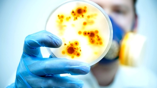 اصابة طالبة طب (33 عاما) بفيروس كورونا