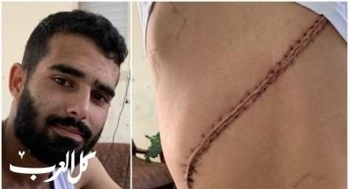 محمد نصاصرة من اللد: عنصريون أوسعوني ضرباً