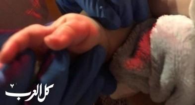 عراد: تخليص يد طفل بعد أن علقت بملاقط غسيل