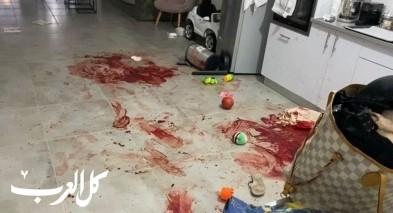 الجنوب: إصابة سيدة إثر طعنها بالسكين وحالتها حرجة