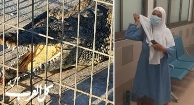 استقرار في حالة الطفل من يافا بعد ان هاجمه تمساح