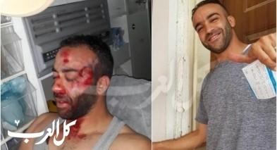 بعد إصابته بمظاهرة أم الفحم: مهند محاميد يتحسّن