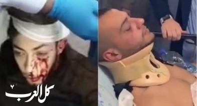حامد: المستوطنون صرخوا عربي عربي وضربوني