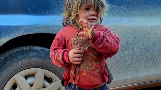 وفاة طفلة سورية إثر تعنيفها على يد والدها